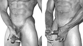 Παχουλός έφηβος γυμνό φωτογραφίες